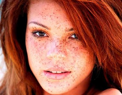 Las manchas de pigmento sobre la frente de la causa y el tratamiento