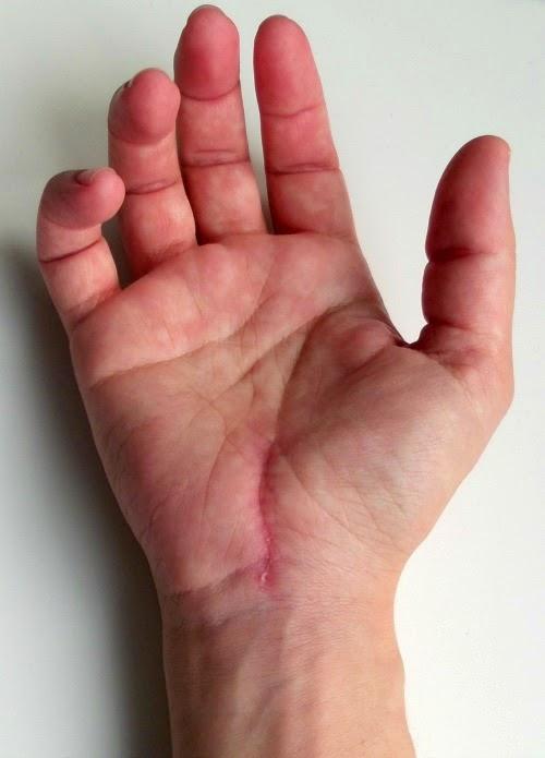 värk i handled och fingrar