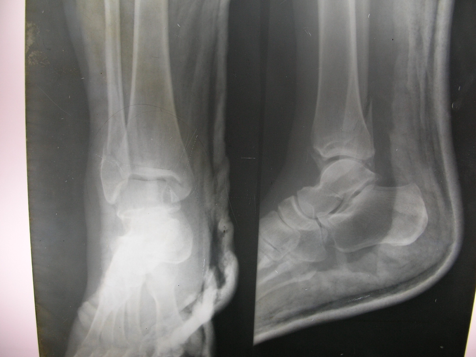 Lateral Malleolus Fracture