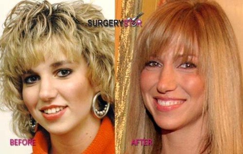 Celebrity Plastic Surgery Expert Sued Over Cyndi Lauper ...