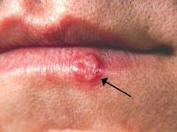 Inilah Penyebab Penyakit Herpes Yang Menyerang Tubuh