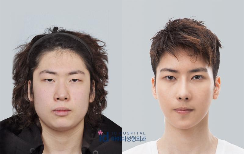 ID Hospital Korea Plastic Surgery: 7월 2013