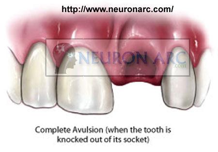 Treatment of Avulsed Teeth