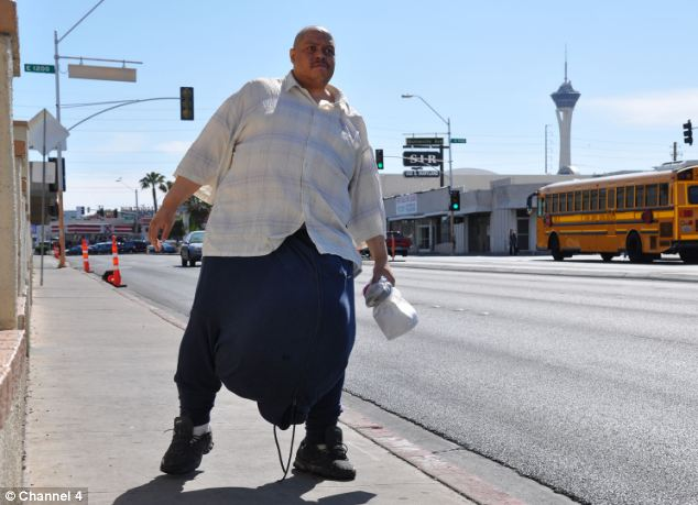 Man With 10-stone Testicles