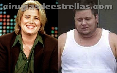 Chaz Bono antes y despues