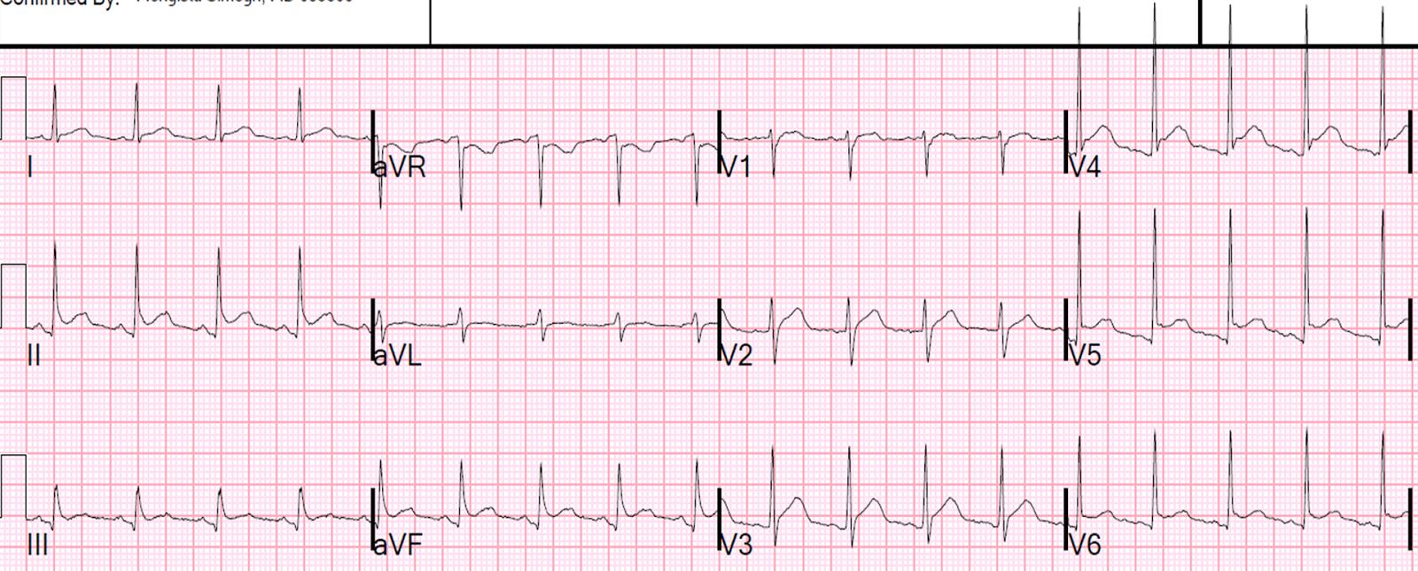 Dr Smith S Ecg Blog Ecg Of Pneumopericardium And