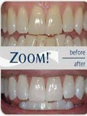 memakan permen lollipop beresiko  menjadikan gigi anda menguning Yang Harus Anda Sebelum Memutihkan Gigi Agar Aman