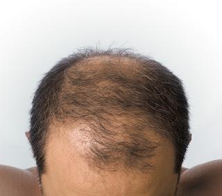 alopécie masculine