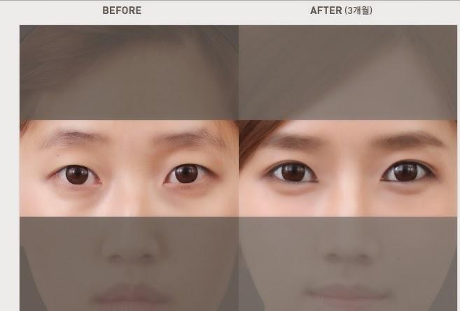 Foto sebelum dan sesudah pembuatan aegyo sal di Wonjin