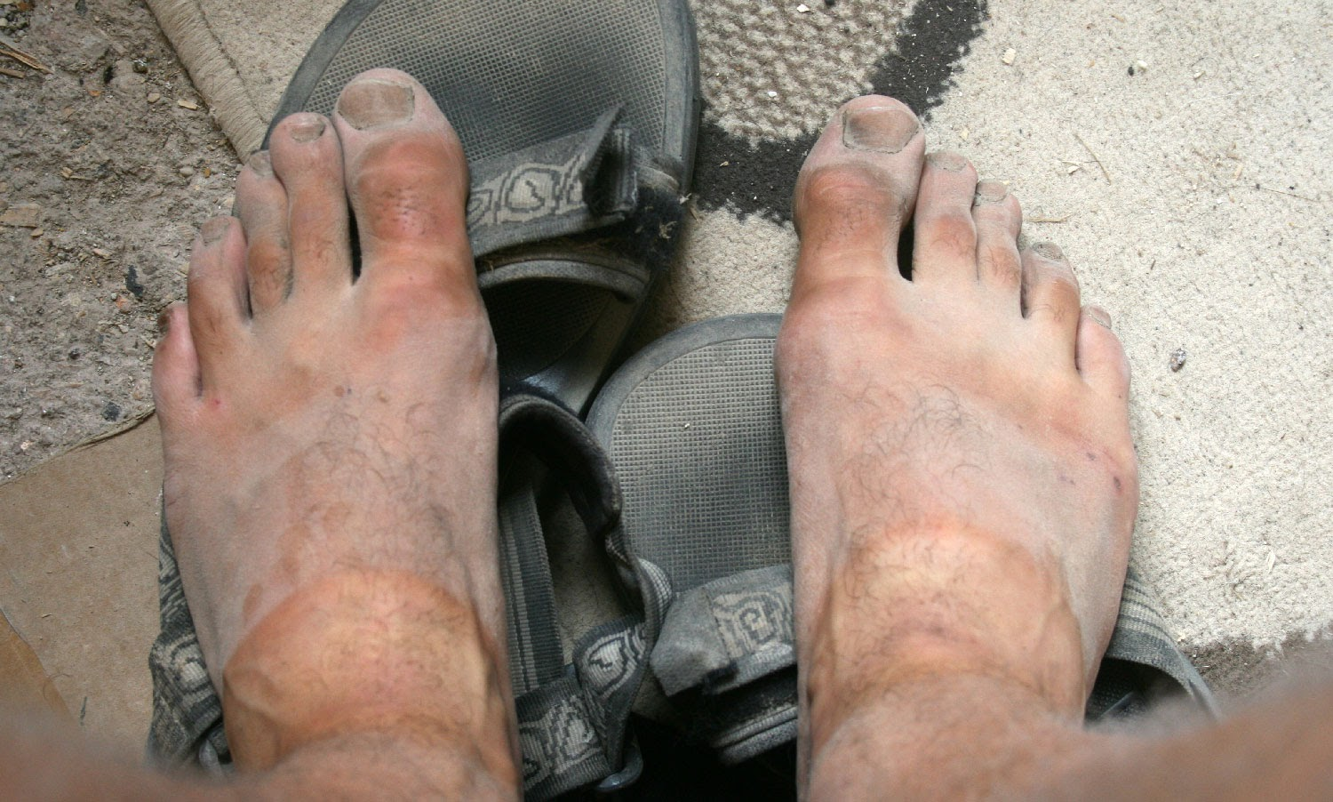 Super dusty feet