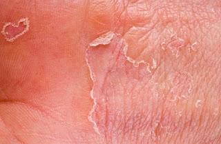 Eczema ubat kulit kering dan gatal ubat kulit kepala gatal ubat kulit gatal ubat kulit berminyak ubat kulit rawatan kulit kering rawatan kulit gatal