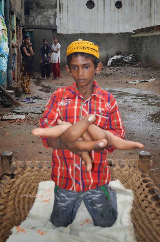 Kaleem Budak lelaki yang mempunyai Tangan Gergasi