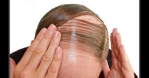 Como curar los cabellos por la miel