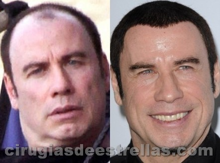 John Travolta antes y después