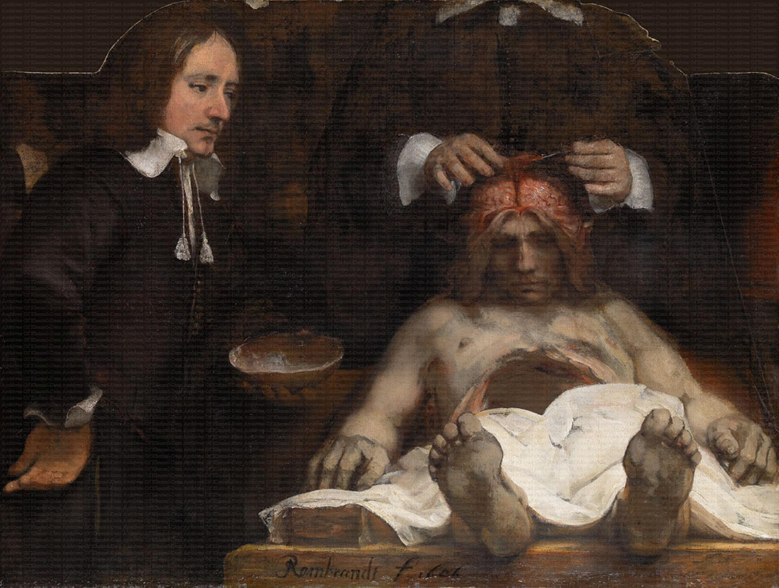 the anatomy lesson The anatomy lesson of dr nicolaes tulp, 1632 by rembrandt baroque genre painting mauritshuis, hague, netherlands.