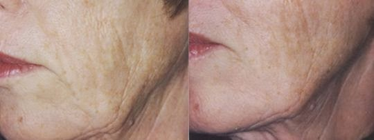 Tighten Sagging Jowls And Flaccid Face Skin With Cheek Lifting