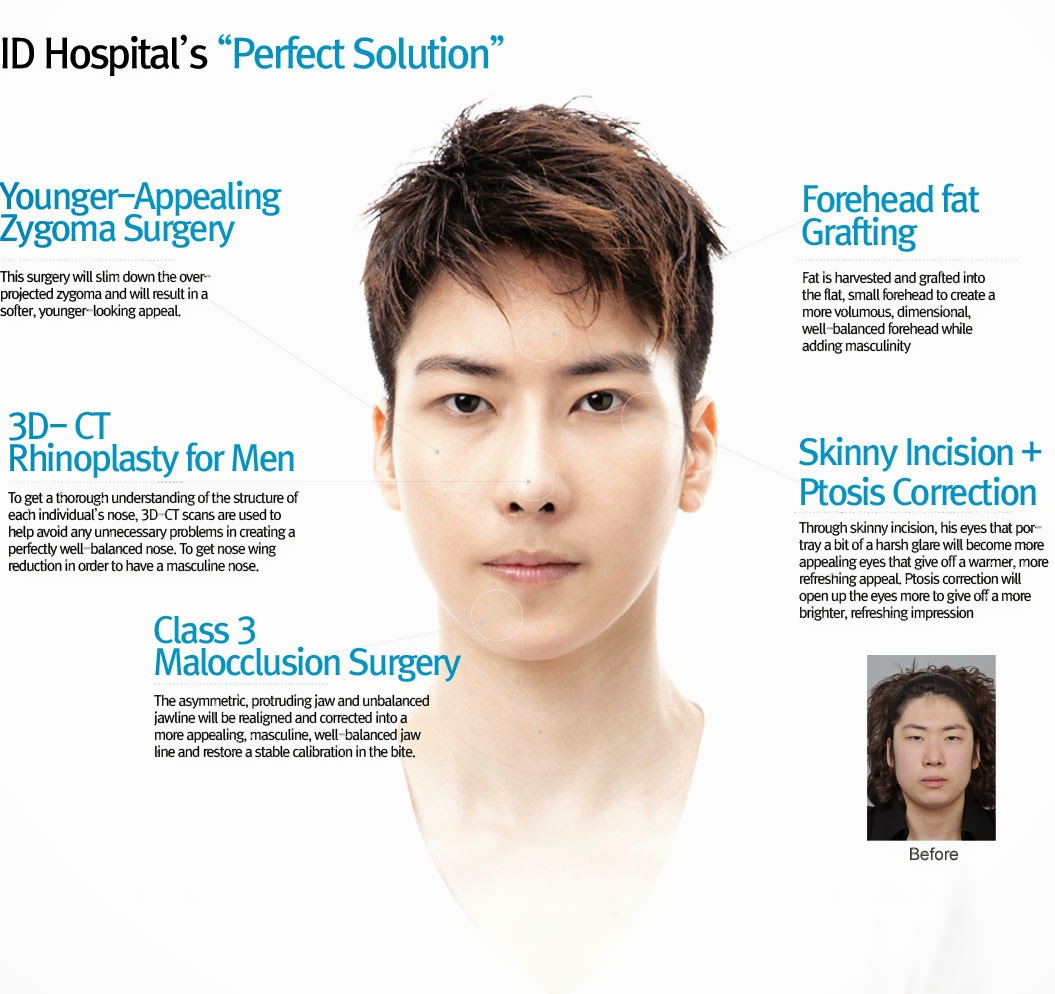 Some Of The Most Frequented And Highly Demand Surgeries By Men