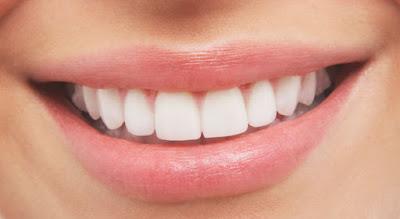 Tipps für schöne weiße Zähne