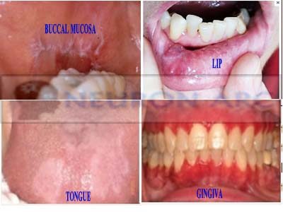 Oral lichen planus: Clinical feature, Symptoms, Types and Treatment
