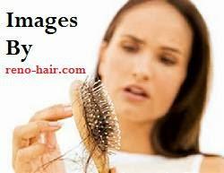 Perawatan Rambut Rontok Terbaru Alami