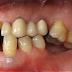 Απώλεια δοντιού, αιτία, συνέπειες, πρόληψη, αντιμετώπιση. Πώς και γιατί χάνεται ένα δόντι;