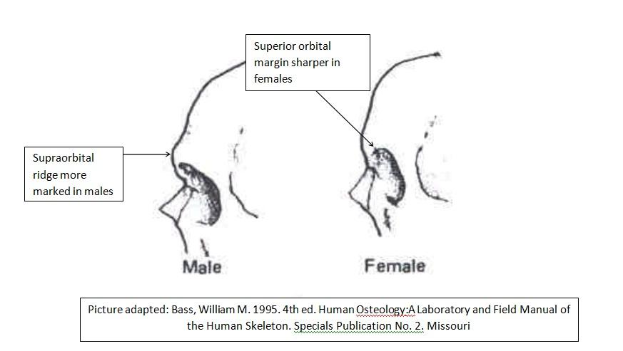 The gallery for --> Prominent Supraorbital Ridge