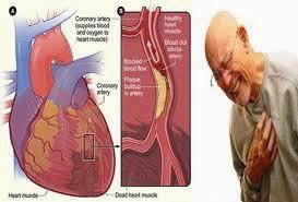 Obat Herbal Jantung Koroner Terbaik