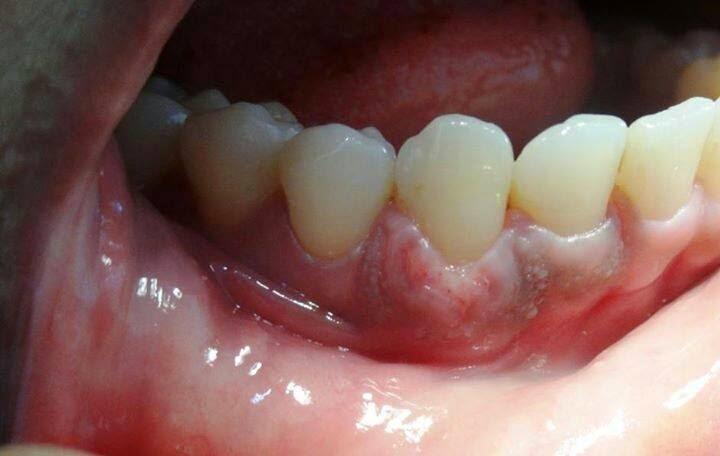 Clinica Dentaria Mais Sorriso Clareamento Dental Fitas Clareadoras