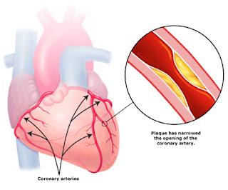 penyakit jantung koroner, obat herbal jantung koroner akut