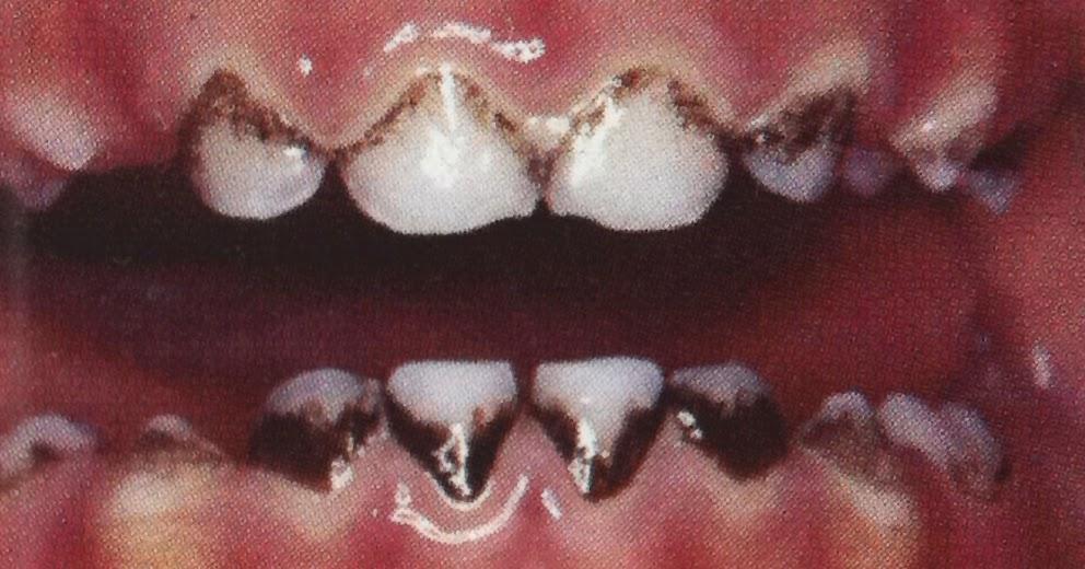 how to fix black teeth