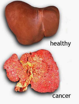 Liver Cancer Causes, Symptoms, Diagnosis, Treatment, Prevention ...