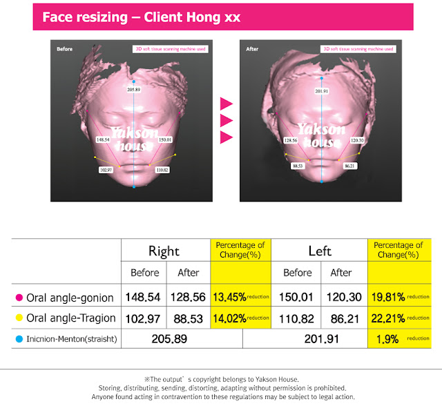 [Yakson program] Clinical trial results of face resizing care