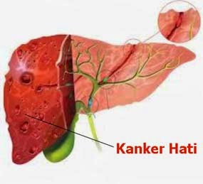 Penyebab Penyakit Kanker Hati