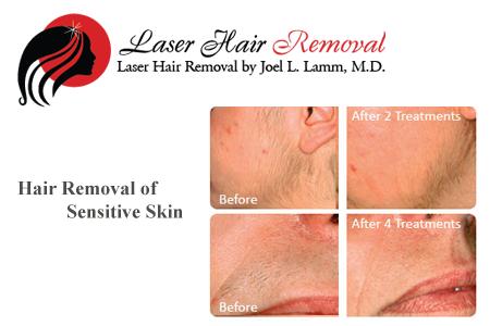 laser hair removal birmingham