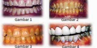 Cara Mencegah Gigi Kuning dan Hitam Secara Alami