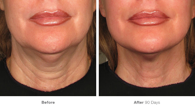 Ultherapy-Before-And-After-Chin-And-Neck