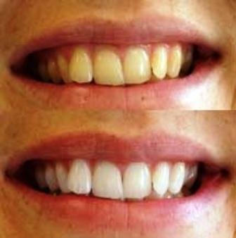 Entre Coisas Tudo Sobre Clareamento Dental Caseiro