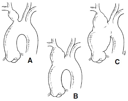 The Pump and the Tubes: Innominate Artery Aneurysm