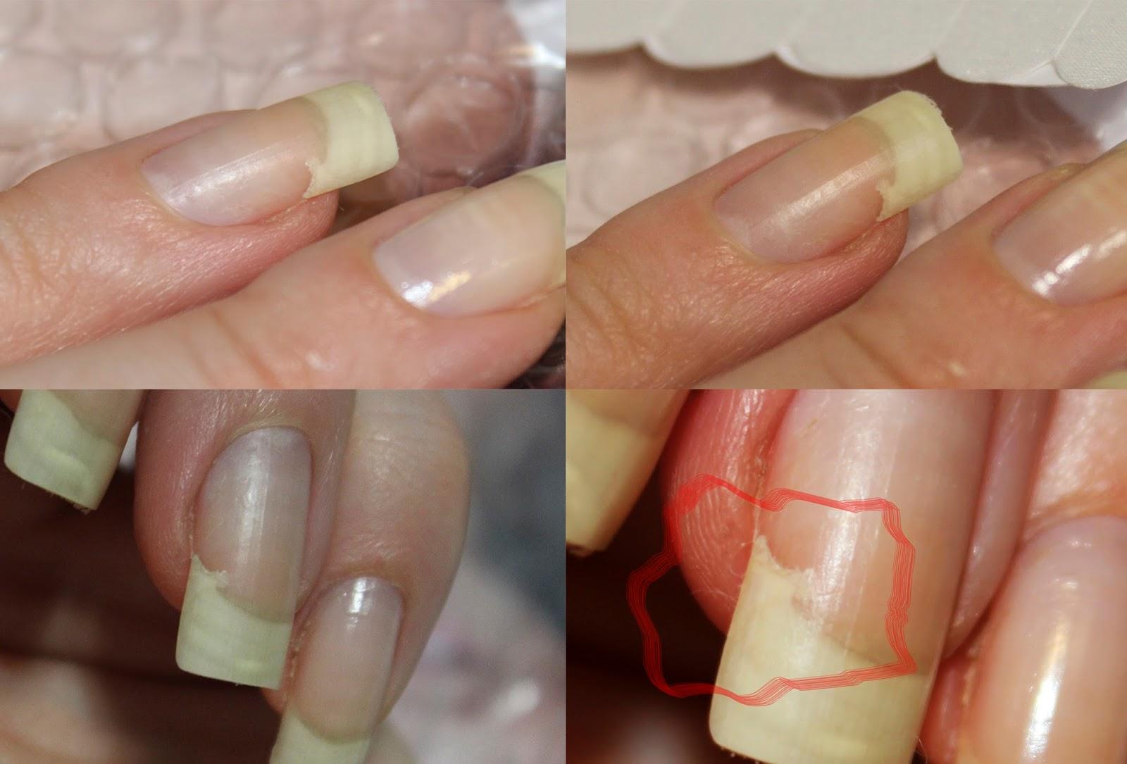 Как укрепить ногти на руках в 45