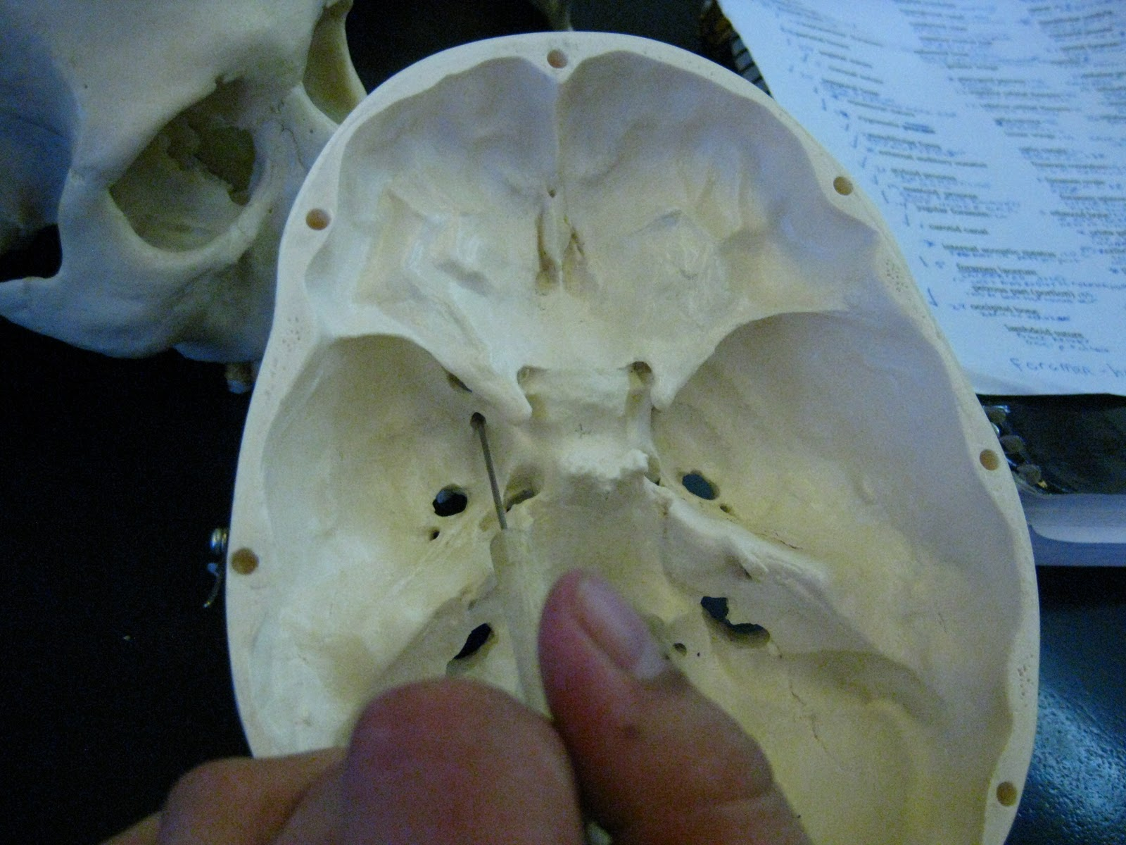 Boned Human Skull Foramen Rotundum Of Sphenoid Bone