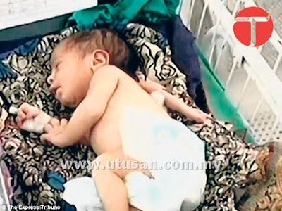 Bayi perempuan yang baru berusia lima hari ini dilahirkan dengan tiga tangan, kes yang berlaku satu dalam sejuta kelahiran. - AGENSI