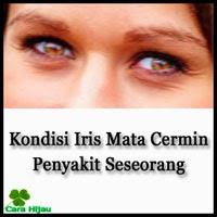 Kondisi Iris Mata, Cermin Penyakit Seseorang