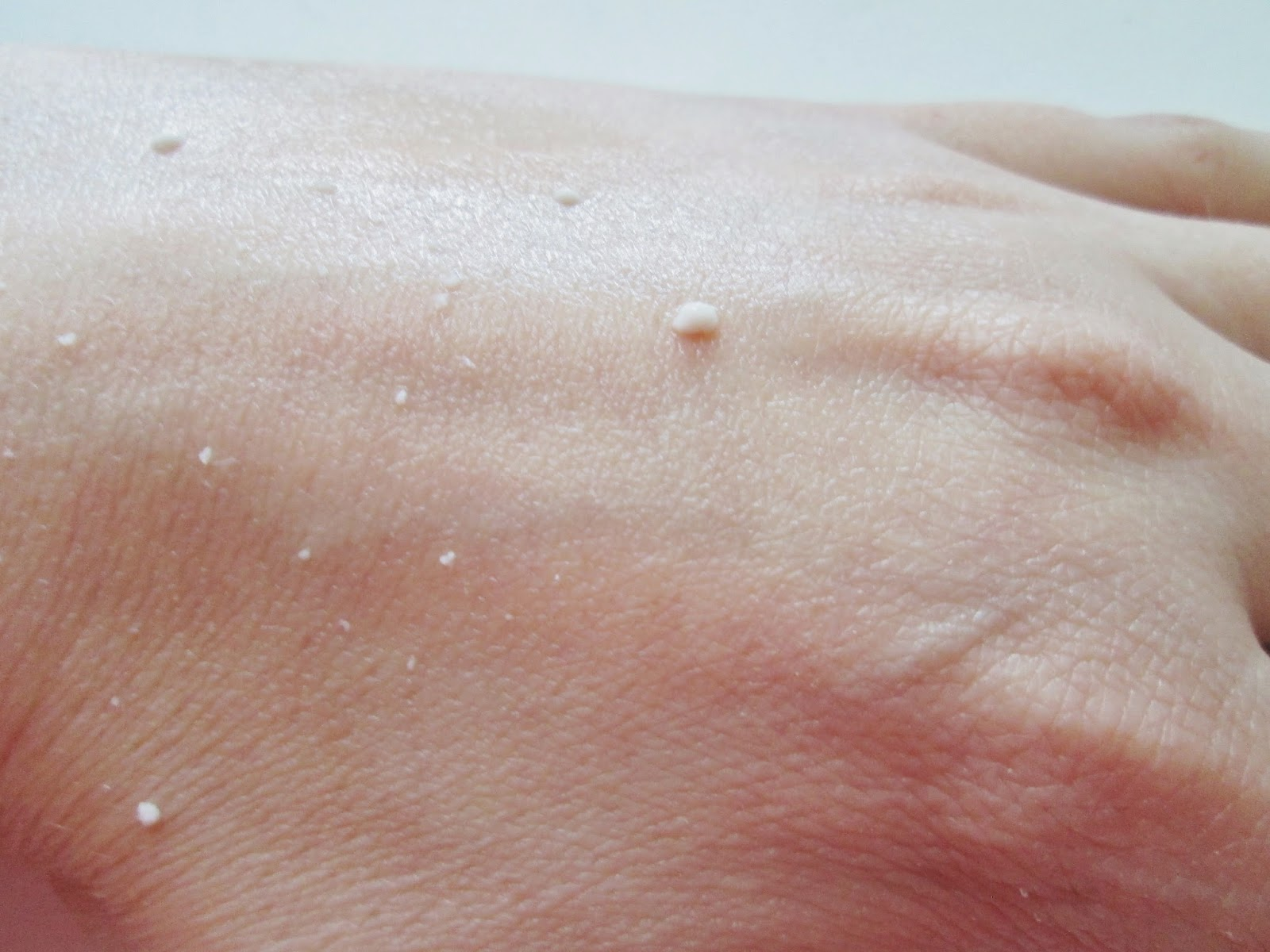 Amy's hand, covered in balls of dead skin that's been released with MICA's exfoliating gel.