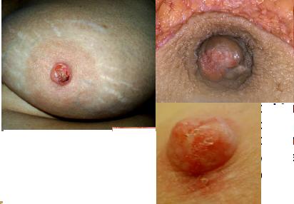 La enfermedad de paget fotos 22