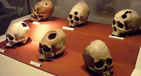Trepanasi; Praktik Operasi Bangsa Inca?