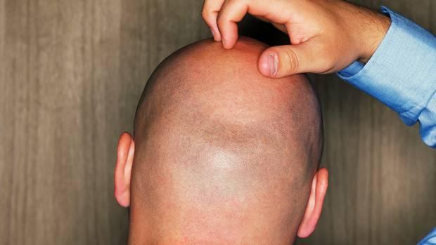 Keguguran Rambut Penyebab Botak