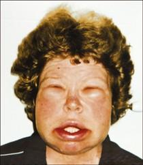 svullnad i ansiktet bihåleinflammation