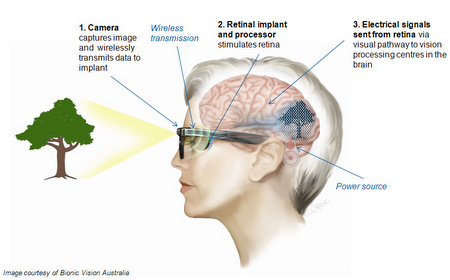 See through my eyes stargardts disease update on the bionic eye check out their website for more information and to see the picture clearer bionic vision australia ccuart Choice Image