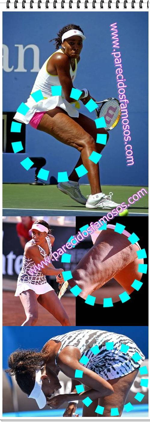 Venus Williams con celulitis