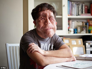 http://www.dailymail.co.uk/health/article-2592254/Adam-Pearson-hopes-beat-prejudice-Under-The-Skin.html